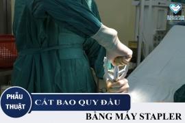 Phẫu thuật cắt bao quy đầu tại Đà Nẵng bằng máy STAPLER chỉ với 10 phút