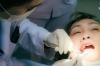 Nhổ Răng Không Đau Nên Chọn Gây Tê Hay Gây Mê?