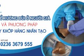 Gãy cổ xương đùi ở người già và phương pháp thay khớp háng nhân tạo
