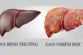 Các dấu hiệu cho thấy gan bị nhiễm độc
